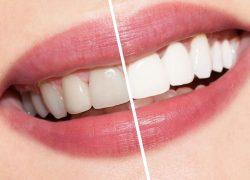 8 Common Dental Procedures